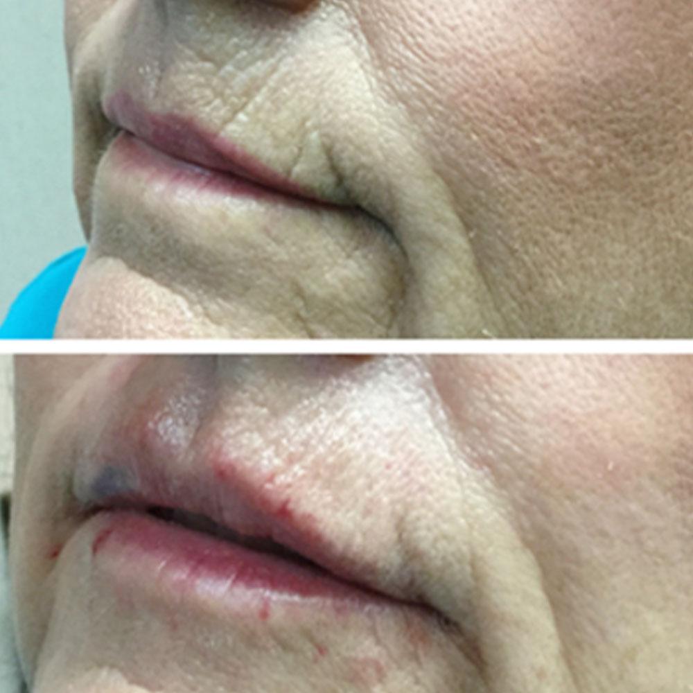volbella-lips-and-peri-oral-lines