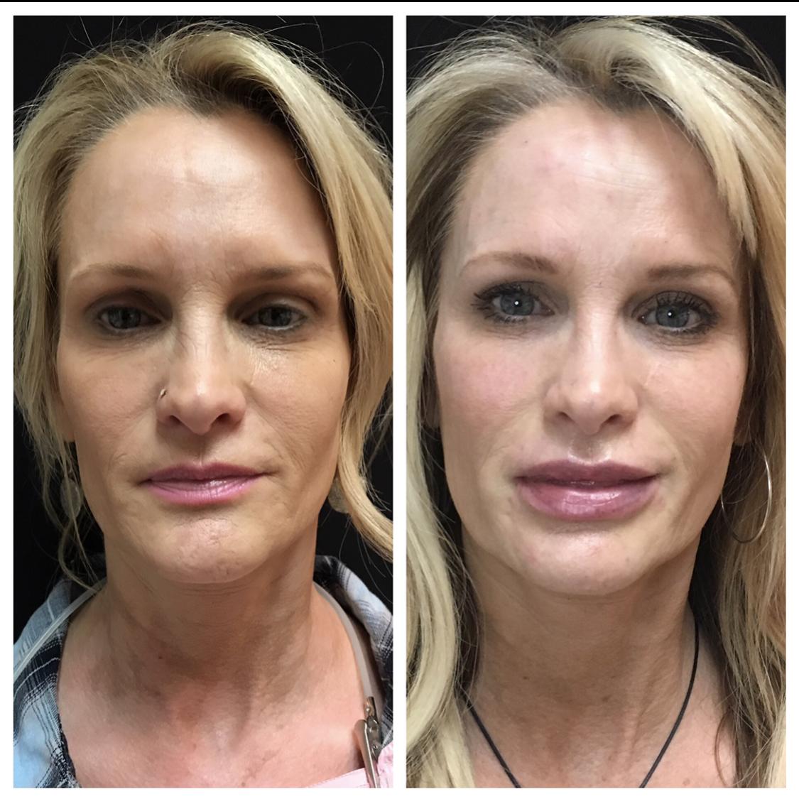 Lip-Augmentation-Augusta