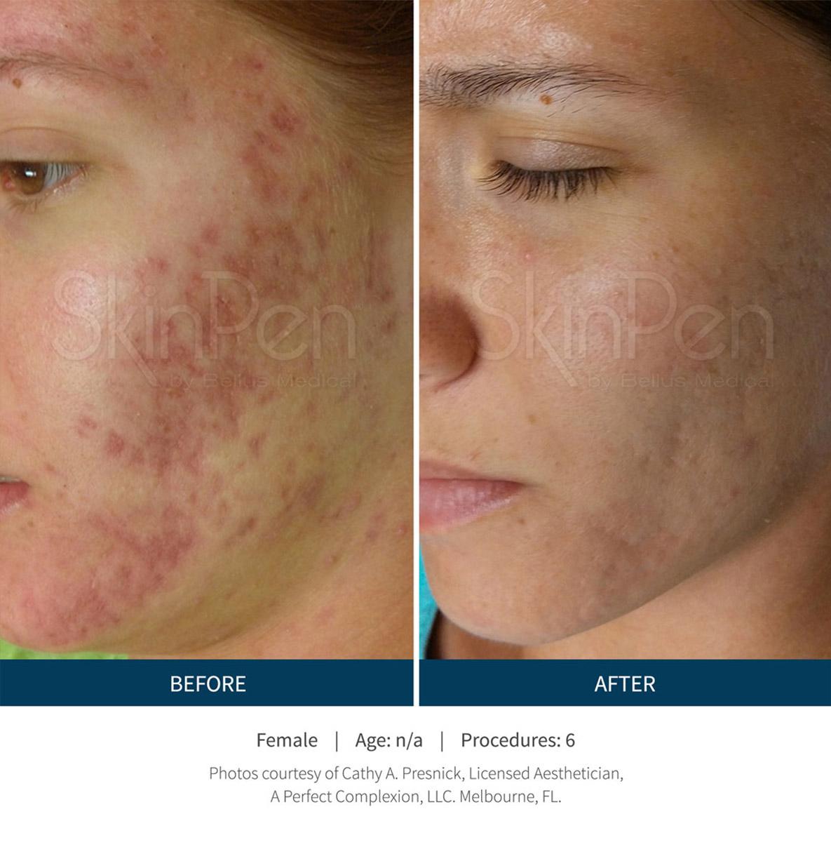 acne scare removal